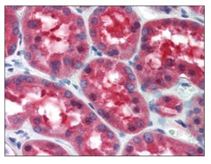 Immunohistochemistry (Formalin/PFA-fixed paraffin-embedded sections) - Anti-MECT1 antibody (ab115330)
