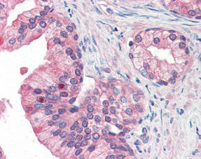 Immunohistochemistry (Formalin/PFA-fixed paraffin-embedded sections) - Anti-MFI2 antibody (ab115334)