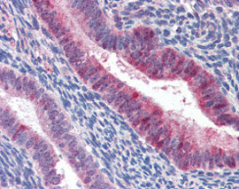 Immunohistochemistry (Formalin/PFA-fixed paraffin-embedded sections) - Anti-Mammaglobin A antibody (ab115338)
