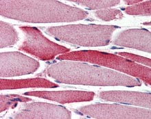Immunohistochemistry (Formalin/PFA-fixed paraffin-embedded sections) - Anti-AMID antibody (ab115456)