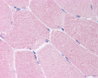 Immunohistochemistry (Formalin/PFA-fixed paraffin-embedded sections) - Anti-BARD1 antibody (ab115477)