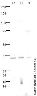 Western blot - Homologous Recombination Panel (H2A.X, gamma H2A.X phospho S139, RAD51, RAD54) (ab115487)