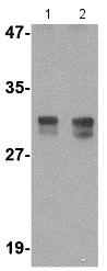 Western blot - Anti-RASD2 antibody (ab115516)