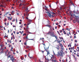 Immunohistochemistry (Formalin/PFA-fixed paraffin-embedded sections) - Anti-ACSL5 antibody (ab115526)