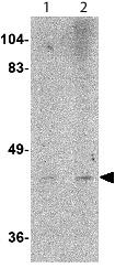 Western blot - Anti-LASS6 antibody (ab115539)