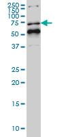 Western blot - Anti-NR1D1 antibody [4F6] (ab115552)