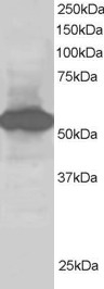 Western blot - Anti-SIL1 antibody (ab115554)