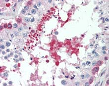 Immunohistochemistry (Formalin/PFA-fixed paraffin-embedded sections) - Anti-SIL1 antibody (ab115554)