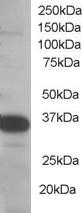 Western blot - Anti-SMUG1 antibody (ab115572)