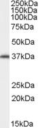 Western blot - Anti-ARA9 antibody (ab115588)