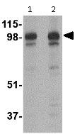 Western blot - Anti-SLITRK2 antibody (ab115594)