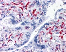 Immunohistochemistry (Formalin/PFA-fixed paraffin-embedded sections) - Anti-SLC44A2 antibody [3D11] (ab115666)