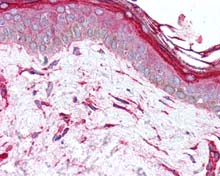 Immunohistochemistry (Formalin/PFA-fixed paraffin-embedded sections) - Anti-Hsp47 antibody (ab115668)
