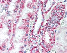 Immunohistochemistry (Formalin/PFA-fixed paraffin-embedded sections) - Anti-Prohibitin antibody (ab115669)