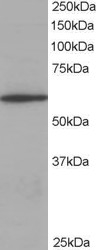 Western blot - Anti-Coronin 1a antibody (ab115673)