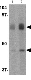 Western blot - Anti-DHX58 antibody (ab115674)