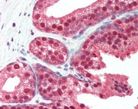 Immunohistochemistry (Formalin/PFA-fixed paraffin-embedded sections) - Anti-SLITRK4 antibody (ab115690)