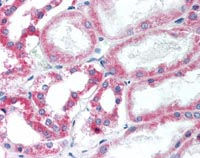 Immunohistochemistry (Formalin/PFA-fixed paraffin-embedded sections) - Anti-HSD11B2 antibody (ab115696)
