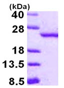SDS-PAGE - RBBP9 protein (ab115718)
