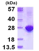 SDS-PAGE - MYL4 protein (ab115722)