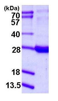 SDS-PAGE - RBP1 protein (ab115723)