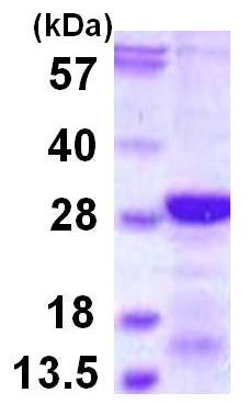 SDS-PAGE - DSCR1L1 protein (ab115724)
