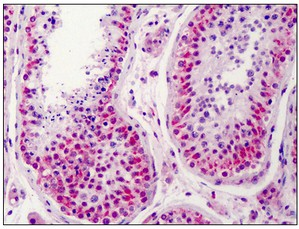 Immunohistochemistry (Formalin/PFA-fixed paraffin-embedded sections) - Anti-NEK2 antibody (ab115731)