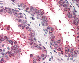 Immunohistochemistry (Formalin/PFA-fixed paraffin-embedded sections) - Anti-hHR23b antibody (ab115739)