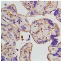Immunohistochemistry (Formalin/PFA-fixed paraffin-embedded sections) - Anti-beta Actin antibody [SP124] (ab115777)