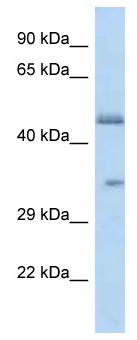 Western blot - Anti-OR2L8 antibody (ab115779)