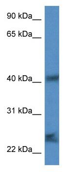 Western blot - Anti-SCAMP1 antibody (ab115781)