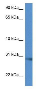 Western blot - Anti-SCAMP5 antibody (ab115788)
