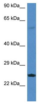 Western blot - Anti-RERG antibody (ab115806)