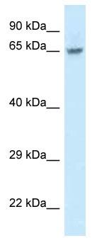 Western blot - Anti-FAM161A antibody (ab115810)
