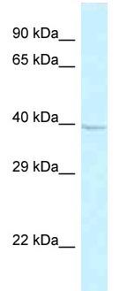 Western blot - Anti-GPR 174 antibody (ab115818)