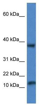 Western blot - Anti-VAMP1 antibody (ab115827)