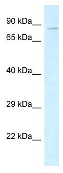 Western blot - Anti-VE Cadherin antibody (ab115828)