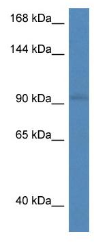 Western blot - Anti-RECK antibody (ab115844)