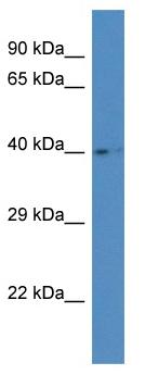 Western blot - Anti-AGA antibody (ab115852)