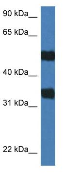 Western blot - Anti-ARSG antibody (ab115853)