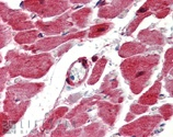 Immunohistochemistry (Formalin/PFA-fixed paraffin-embedded sections) - Anti-Hsp27 antibody (ab115856)