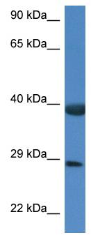 Western blot - Anti-HspBP1 antibody (ab115857)