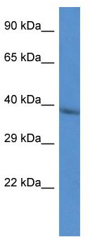 Western blot - Anti-Cathepsin V antibody (ab115859)
