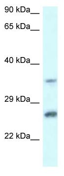 Western blot - Anti-CBR4 antibody (ab115860)