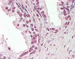 Immunohistochemistry (Formalin/PFA-fixed paraffin-embedded sections) - Anti-PIAS2 antibody (ab115866)