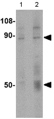 Western blot - Anti-TEM1 antibody (ab115870)