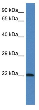 Western blot - Anti-Grpa antibody (ab115875)