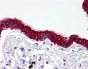 Immunohistochemistry (Formalin/PFA-fixed paraffin-embedded sections) - Anti-SCO2 antibody (ab115877)
