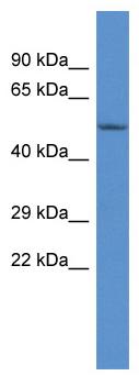 Western blot - Anti-CARKL antibody (ab115881)