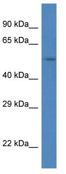 Western blot - Anti-SRPX antibody (ab115886)